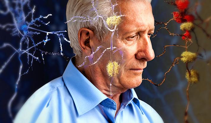 Ilustrasi Penderita Alzheimer/Istimewa