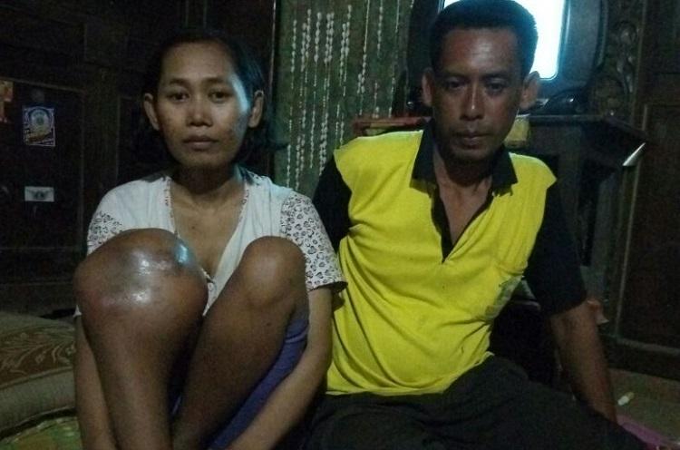 Warsini Warga Ponorogo Penderita Tumor Ganas (Foto Nurcholis/Nusantaranews.co)