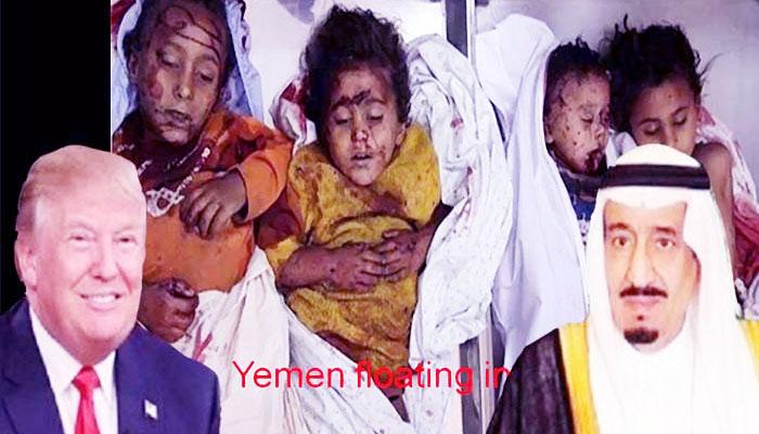 Houthi Mampu Melawan Serangan Brutal Pasukan Koalisi Pimpinan Arab Saudi