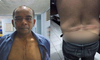 Anggota TNI AU Korban Penganiayaan (Foto Dok. Penanegeri)