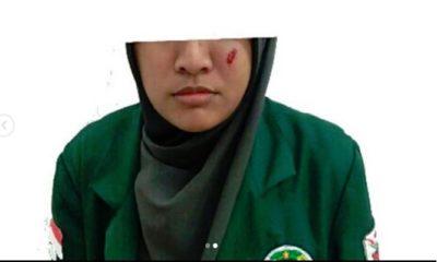 Salah Satu Mahasiswi yang Menjadi Korban Represif Saat Ikut Demo di Medan (Foto Dok. Pema USU)