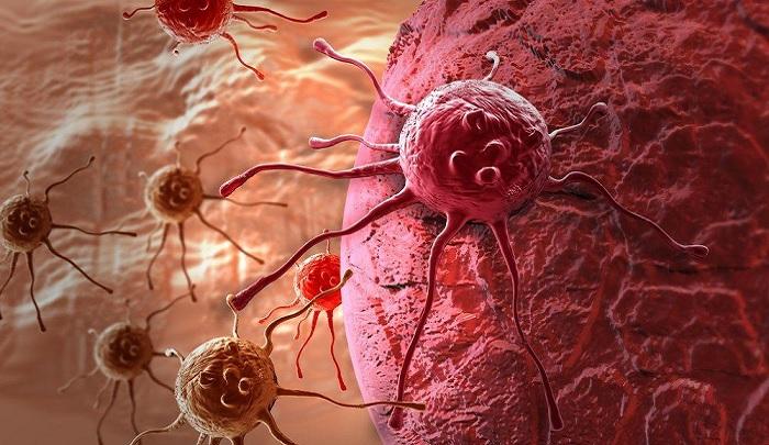 Mendeteksi dini Penyakit Kanker dan pencegehannya. (FOTO: shutterstock)