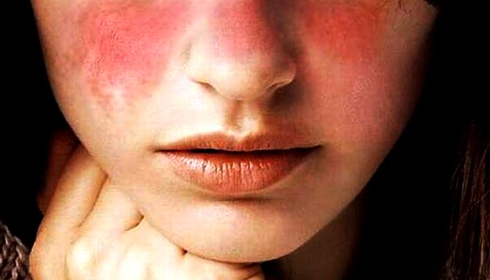 Penyakit Lupus Pada Perempuan. (Foto: Ilustrasi/Parahita Diagnostic Center)