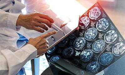 MRI Menunjukkan COVID-19